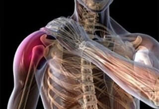 Перелом большого бугорка плечевой кости без смещения: лечение реабилитация, отрывной перелом, продолжительность больничного