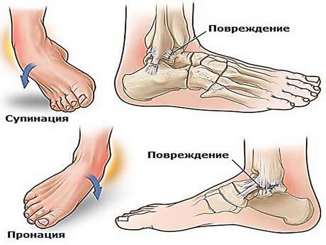 Повреждения нижней части ноги
