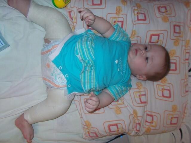 Малыш в специальном бандаже
