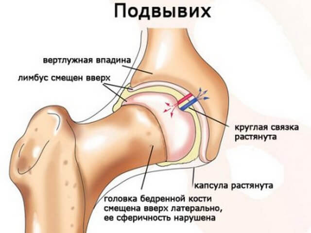 Травма бедра