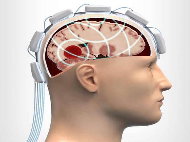 Ультразвуковой шлем