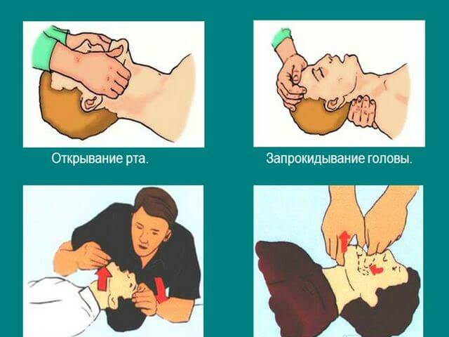 Запрокидывание головы больного