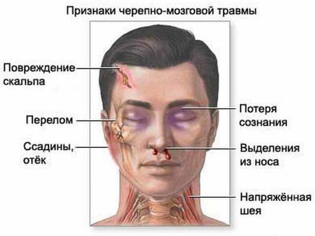 Признаки травмы головы
