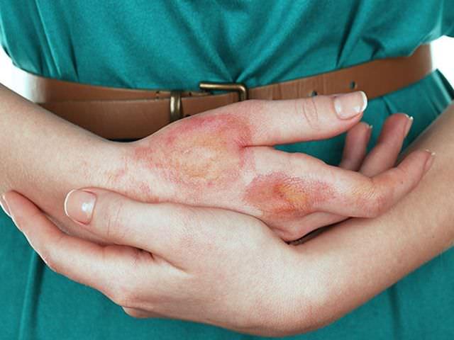 Что можно предпринять при повреждении руки