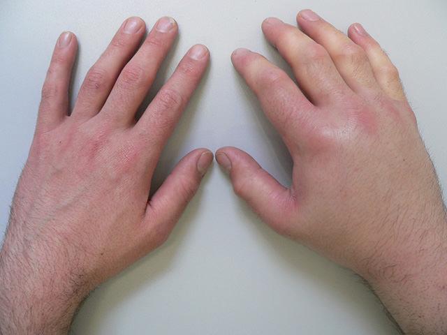 Ушиб кисти руки способы лечения в домашних условиях: видео