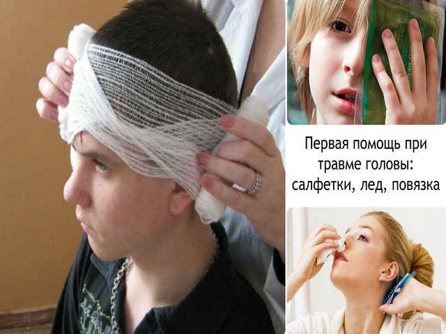 Комплекс экстренных медицинских мероприятий при травме головы