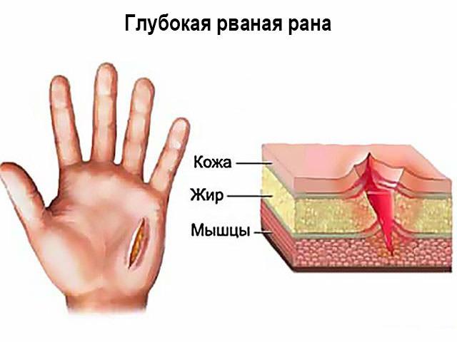 Схема травмы