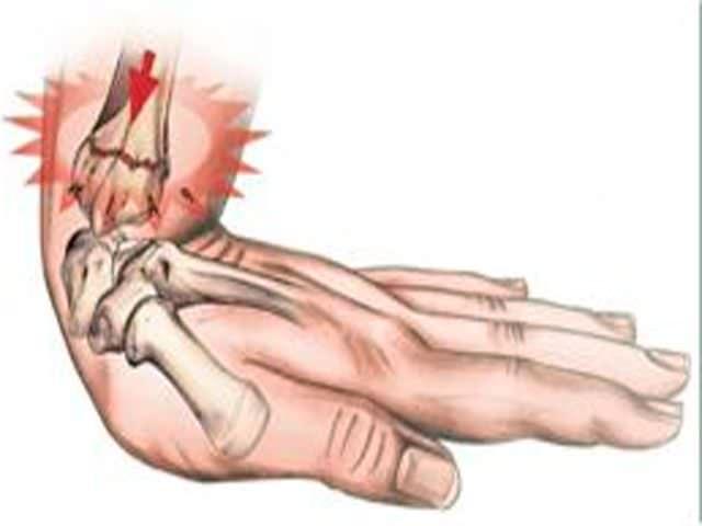 Травма кисти