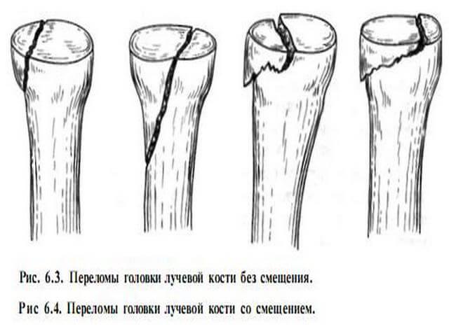 Виды повреждений