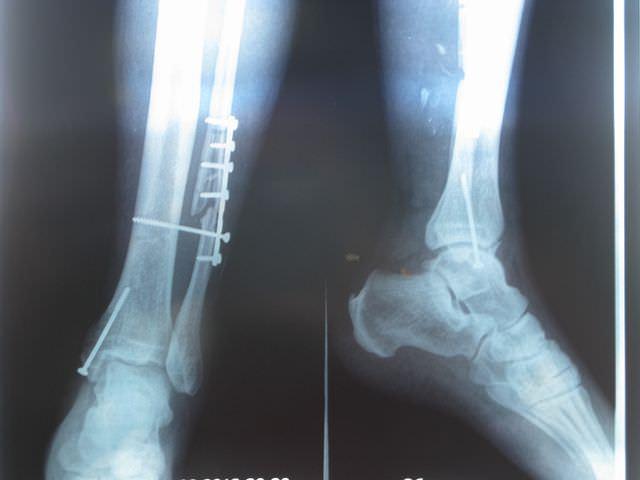 Рентген перелома ноги