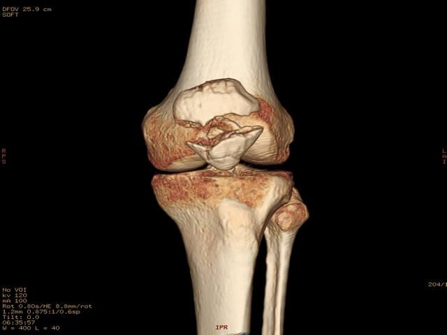 Томография коленной части ноги