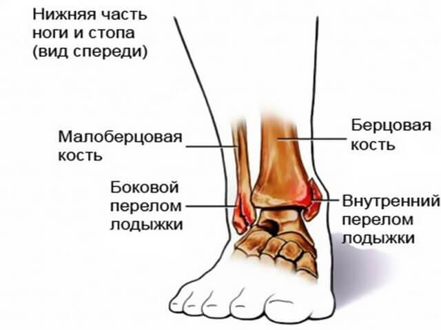 перелом наружной лодыжки правой голени