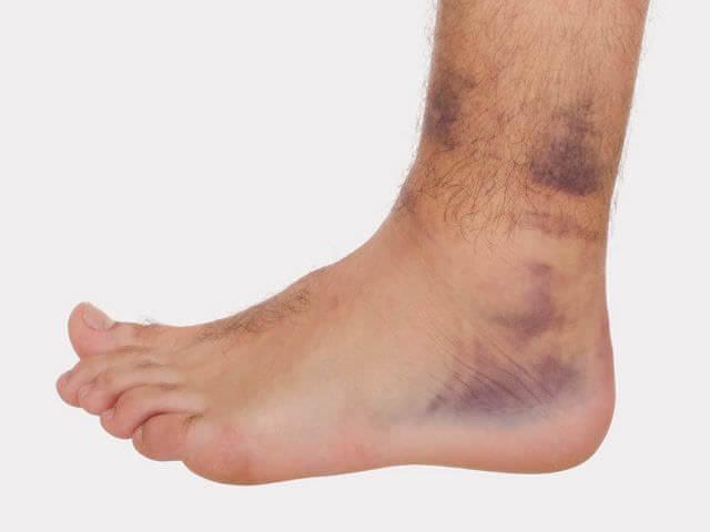 перелом голени когда можно наступать на ногу