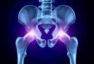 Перелом шейки бедра в пожилом возрасте лечение без операции