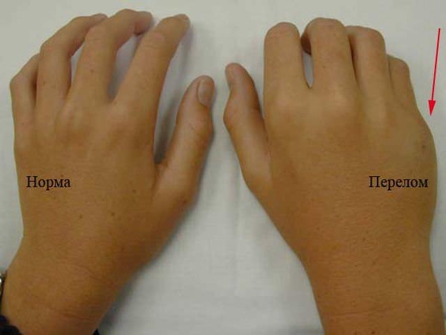 Норма и перелом фаланга пальца
