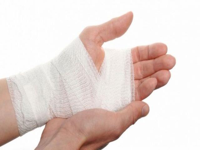 Реабилитация при переломе руки