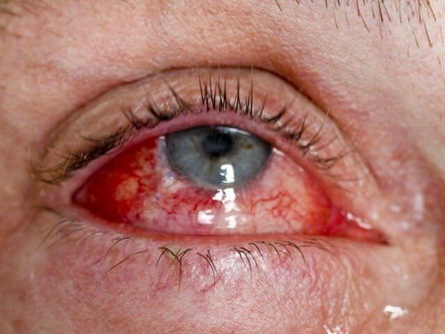 Три самых частых травмы глаза