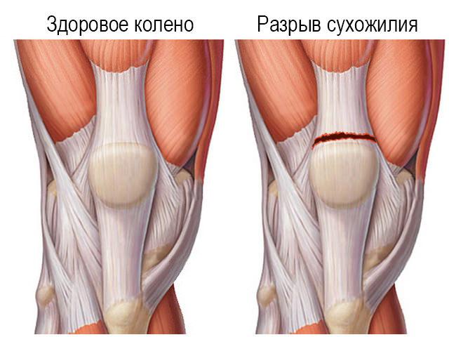 Изображение - Травма сустава лечение travma-kolena-2