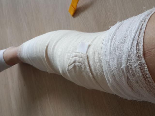 Изображение - Травма сустава лечение travma-kolena-8