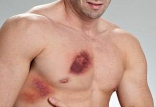 Все о травмах грудной клетки