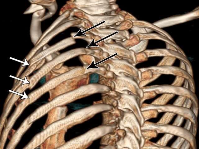 Сломанные ребра
