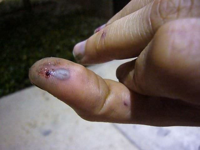 Сильно посенел палец после ушиба