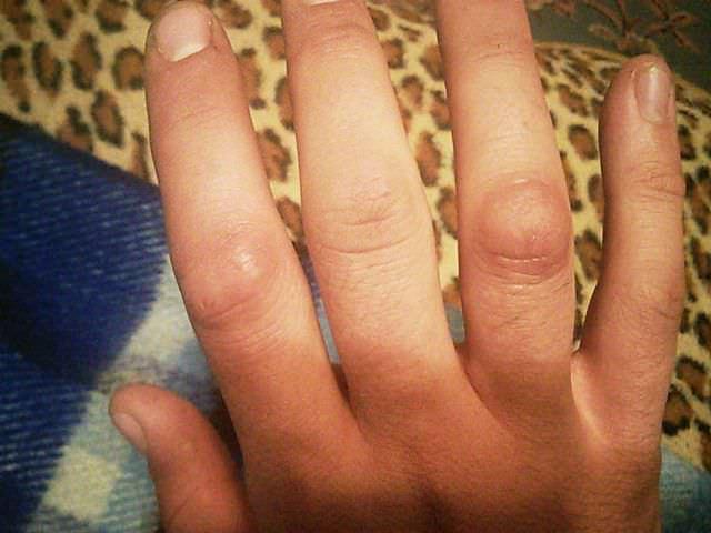 Острая боль в руке