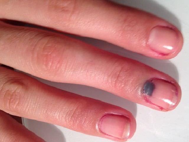 Закрытое повреждение тканей среднего пальца
