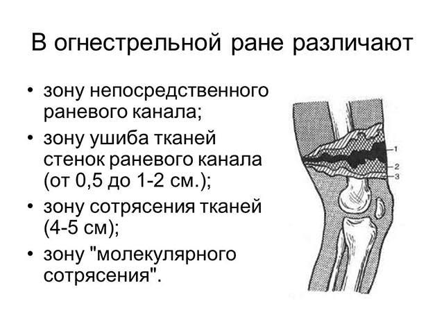 Редкий вид ранения