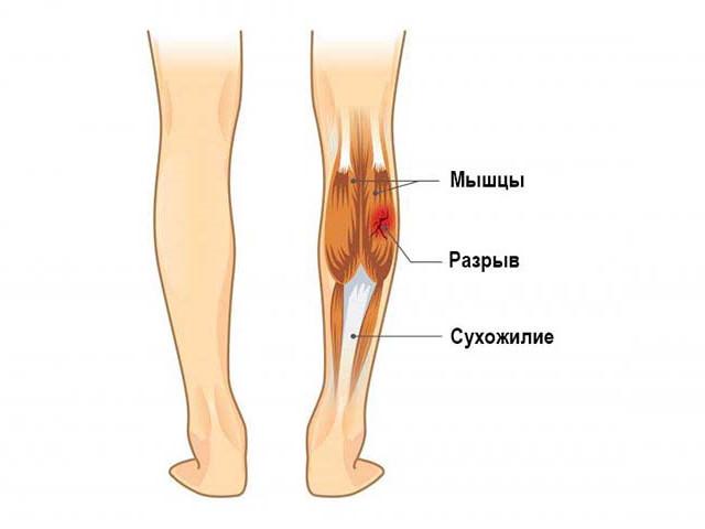 Повреждение мышечной ткани