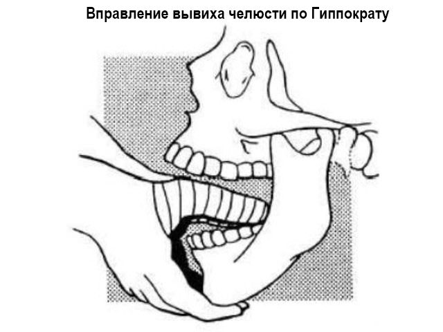 Что такое межсуставной диск челюсти и как его восстановить последствия травмы разрыва связок коленного сустава