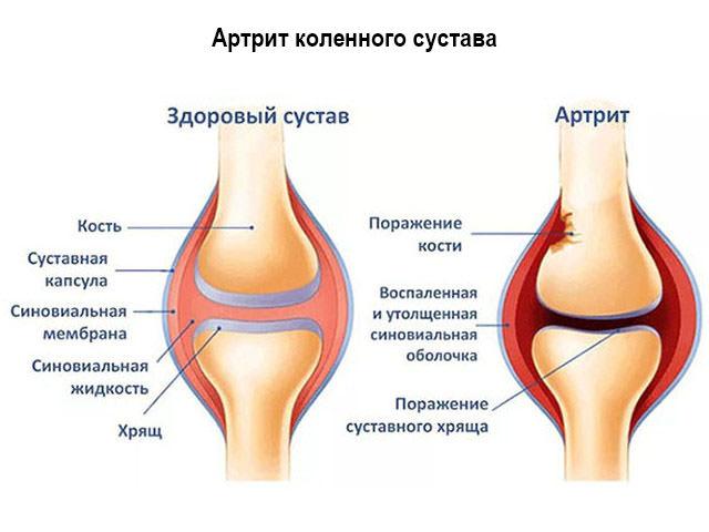 Осложнение после травмы