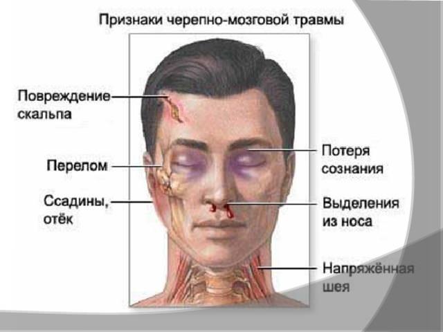 Как определить травму