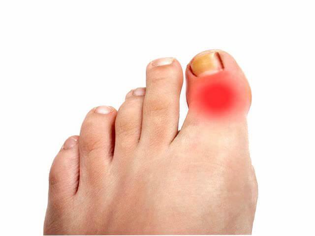 Больной палец на ноге