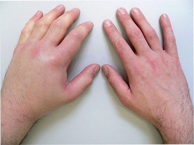 У ребенка болят кисти рук и стопы
