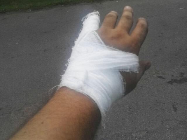 Забинтованный палец