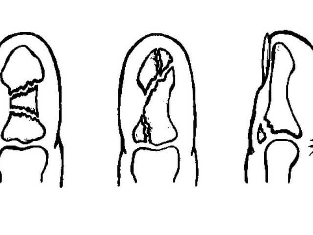 как ставят спицу при переломе пальца