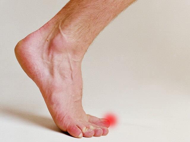 Как лечить ушиб ноги с отеком в домашних условиях: мази