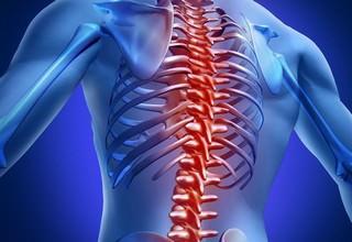 Компрессионный перелом позвоночника грудного отдела симптомы и лечение