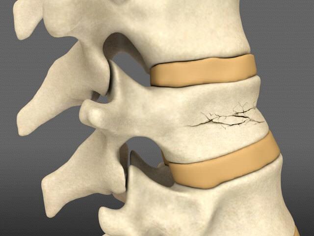 Травма костей