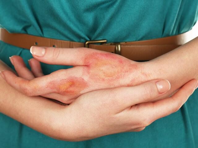 Маленькая травма на руке