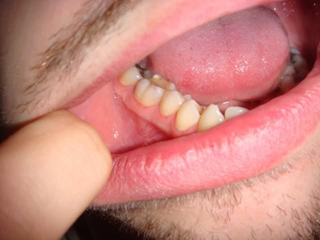 Заболевание слизистой рта