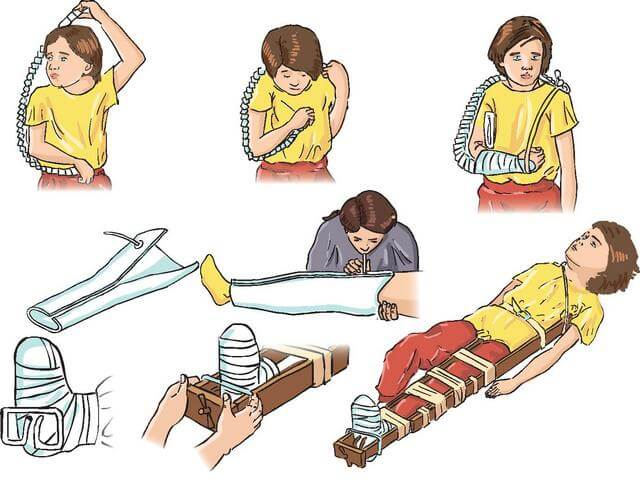 при переломе костей предплечья шина накладывается тест
