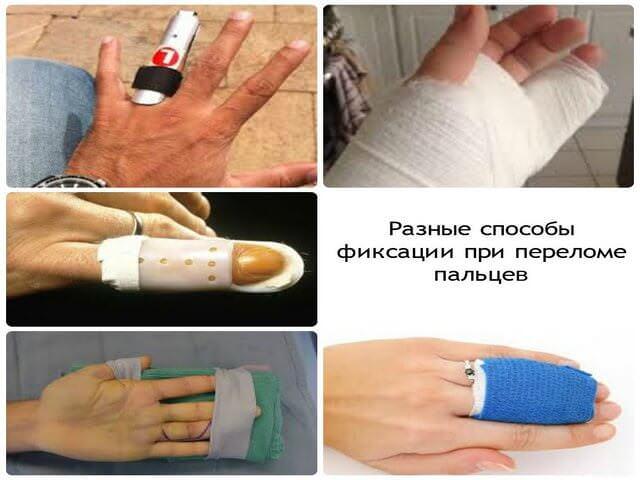 Фиксация пальцев