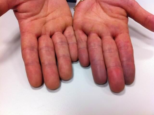 Нарушение кровообращения руки