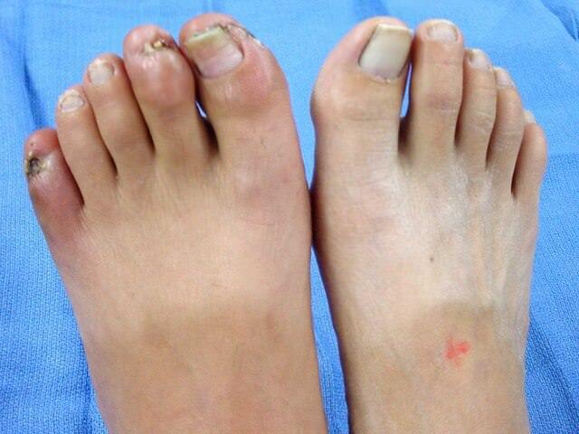 Онемение ног при артрозе причины -