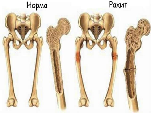 Здоровые и больные кости