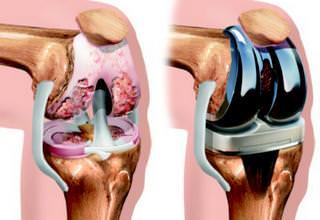 Сколько по времени идет операция по замене коленного сустава