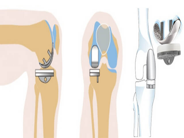 Частичное протезирование
