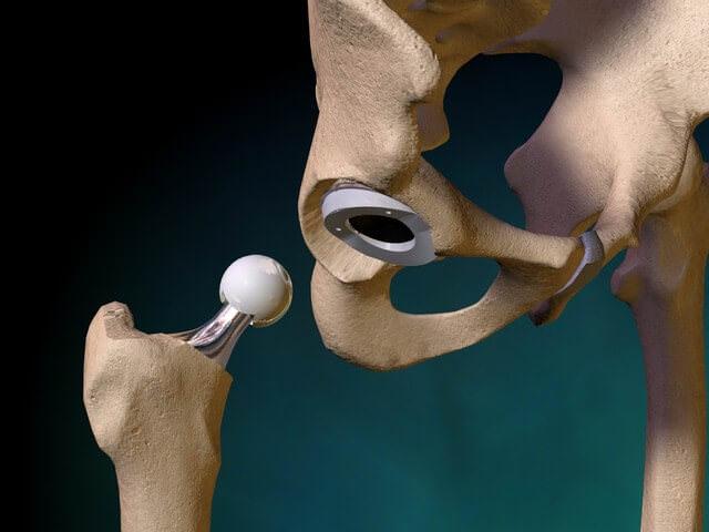 Гибридное крепление протеза